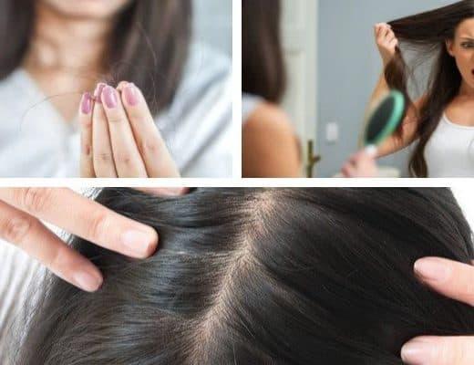 علاج تساقط الشعر مع نصائح قيمة لتحمي شعرك
